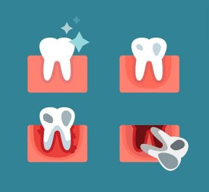 fogagybetegseg