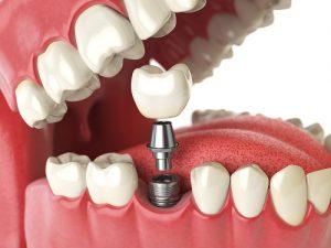 fogaszati-implantatum