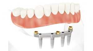 mini-implant-dentaire